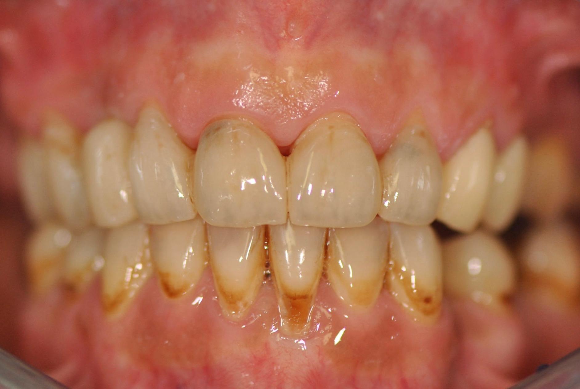 zubni-nahrada-grafen-jslab