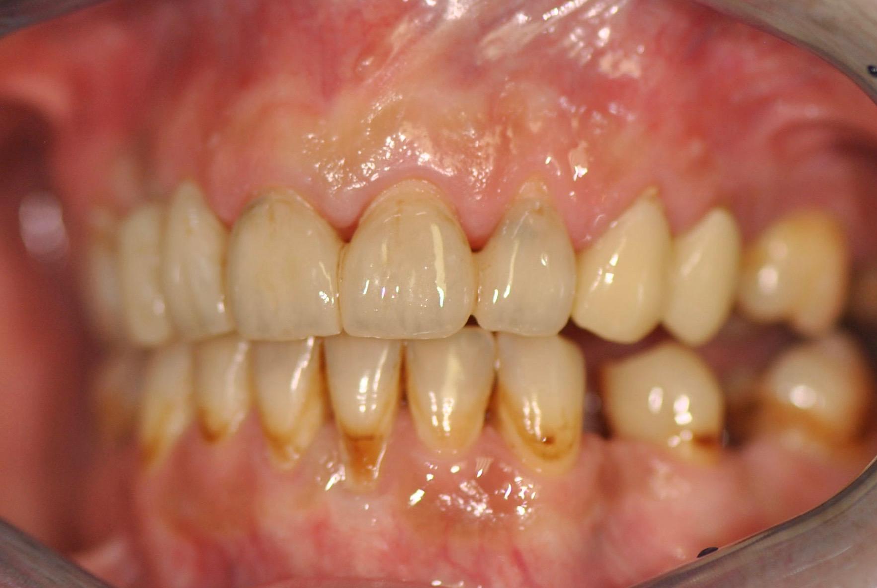 gcam-jslab-zubni