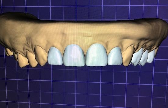 wax-up-CAD