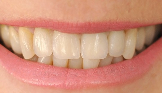 celokeramika-jslab-zubni-laborator