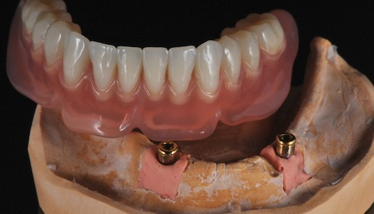 hybridni-nahrada-zubni-laborator-jslab