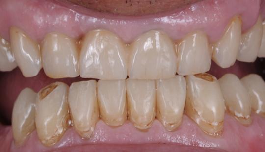 grafen-zubni-mustek