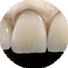 grafen nebo grafenano v zubní laboratři JS Lab