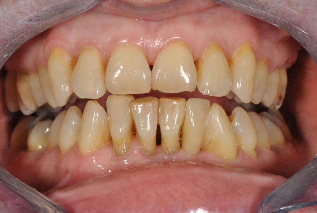 maryland-most-jslab-zubni-nahrada