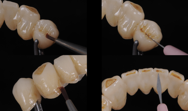 zubni-mustek-grafen