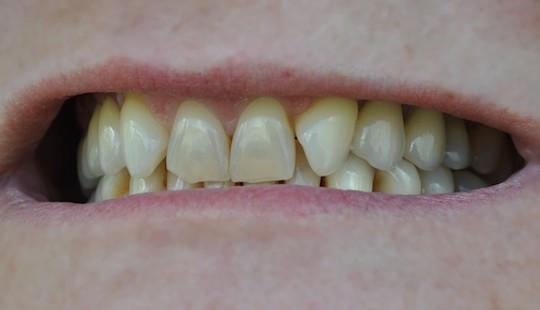 JSLab-zubni-laborator